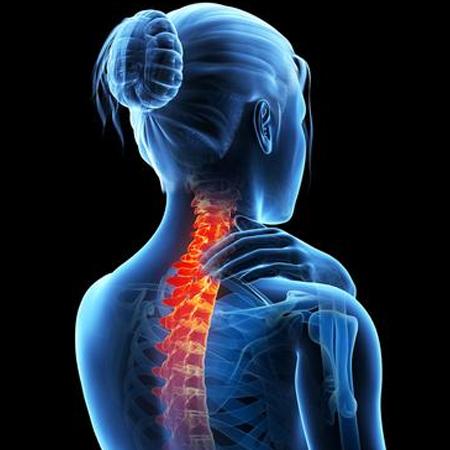 اسباب هشاشة العظام وأعراضه