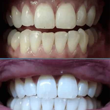 اسهل الطرق لتبييض الاسنان